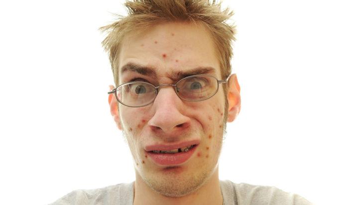 trądzik, pryszcze, twarz, skóra